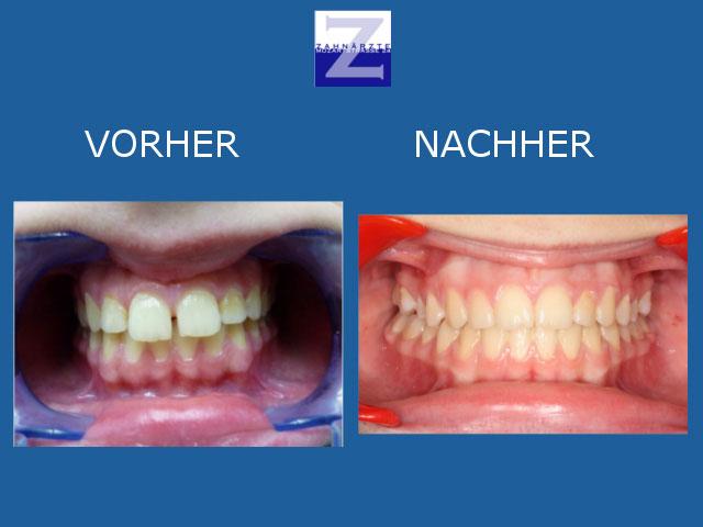 Bilder - Vorher-Nacher-Vergleich - Zahnspange